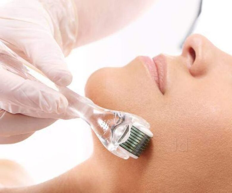 The Pros and Cons to Laser Treatments for Cosmetic Mole Removal