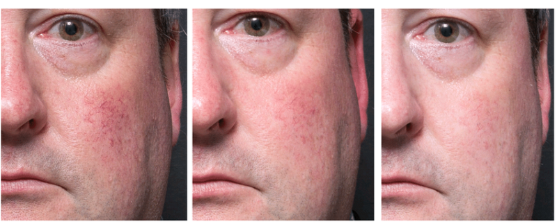 Reducing The Appearing Of Rosacea For Men