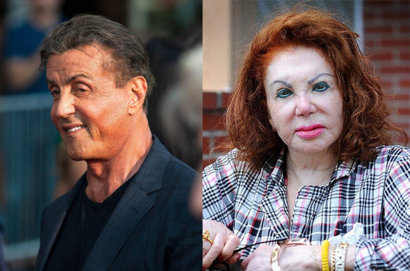 Did Sylvester Stallone Overdo Botox Just like His Mother ...