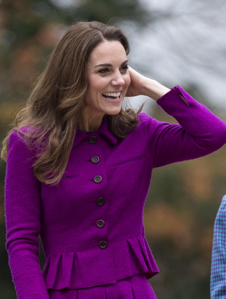 Pale, Tired Look and Dark Circles Under Eyes: Kate ...